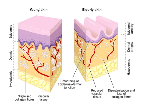 diagram of young and elderly skin