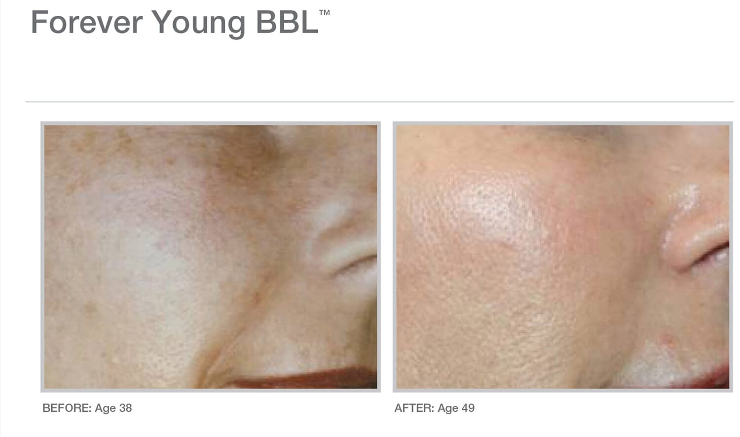 FYBBL-11yrs-after-treatment1